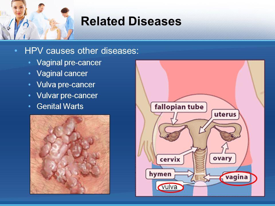 Infectie cu virusul papilloma (hpv)