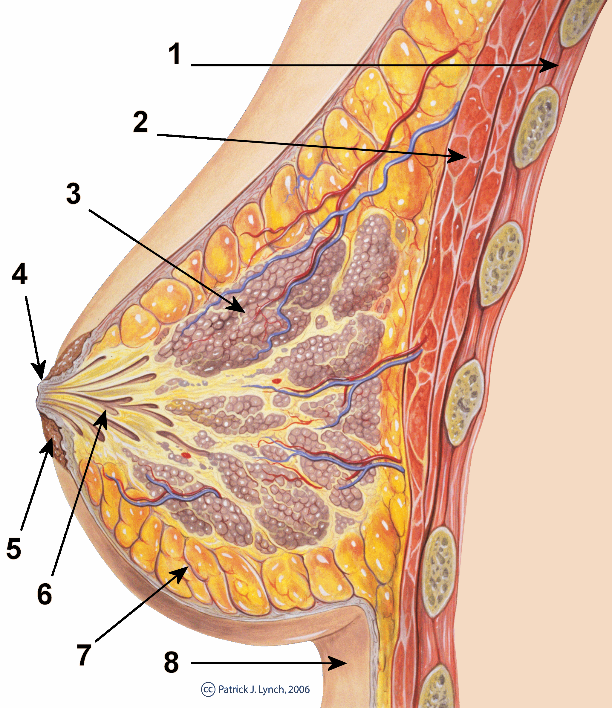 papilloma intraduttale seno sintomi