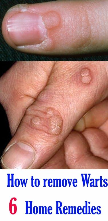 papilloma virus tratament