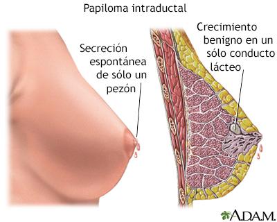 tumor papiloma mama)