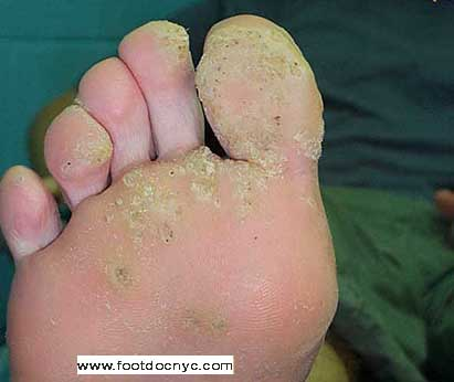 wart removal foot doctor)