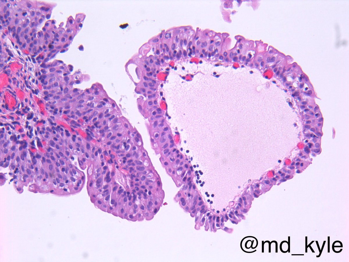 urothelial papilloma patho)