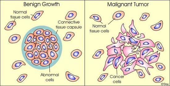 cancer benign malignant