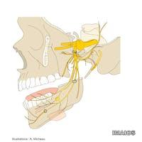 Biopsia nodulului limfatic santinelă