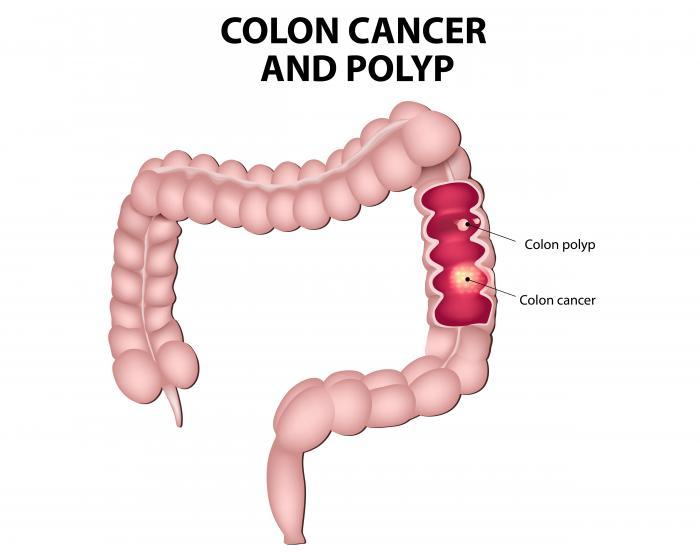 Familial cancer causes, Factorii de risc ai cancerului colorectal