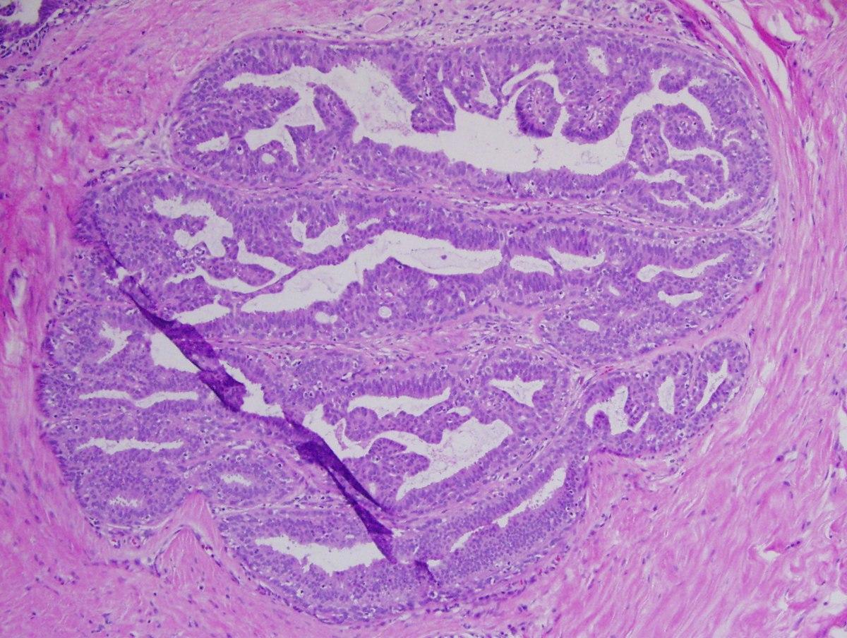 ADENOSIS - Definiția și sinonimele adenosis în dicționarul Engleză Papillomatosis breast histology