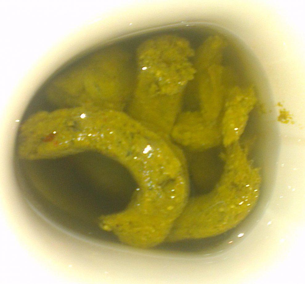 Netter's Internal Medicine - divastudio.ro - Pancreatic cancer yellow diarrhea
