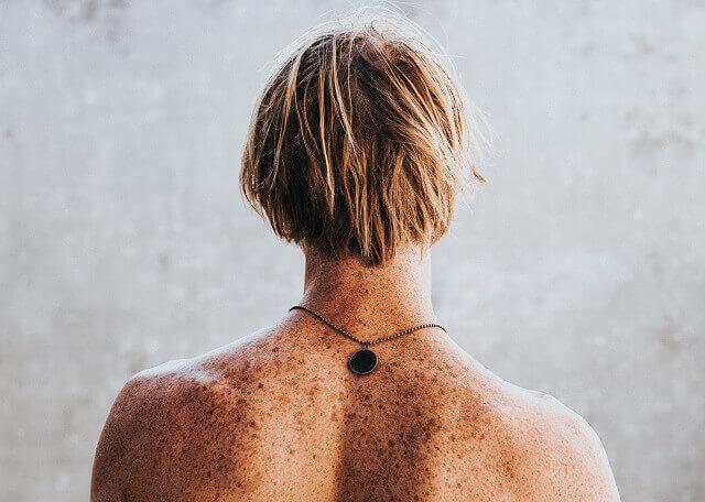 Cancerul de piele te mananca - Cancerul de piele – cauze si simptome