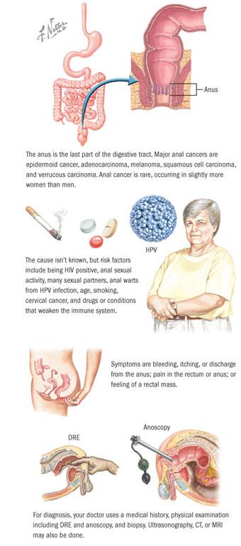 hpv cancer colon