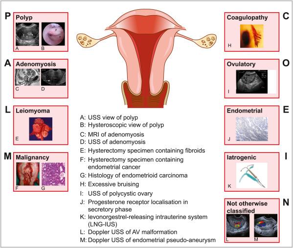 Endometrial cancer is dangerous, Extensie parametrial a venelor uterine