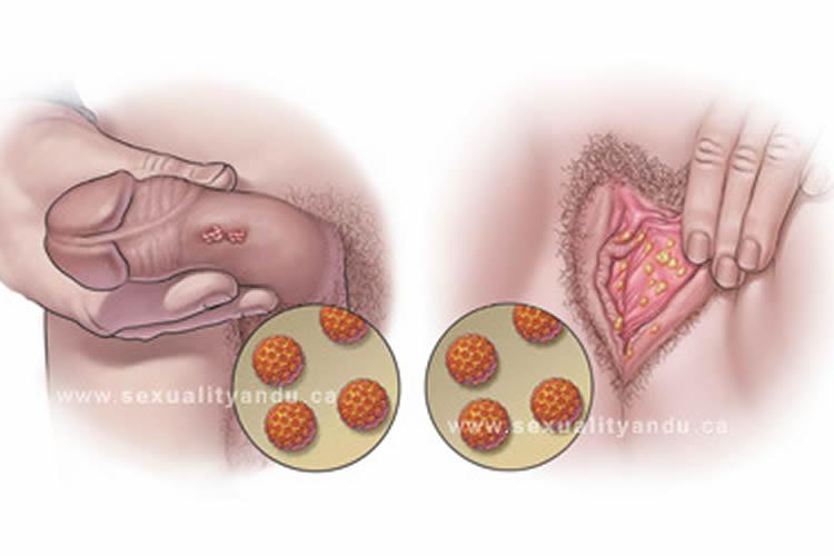 virus del papiloma en mujeres tratamiento)