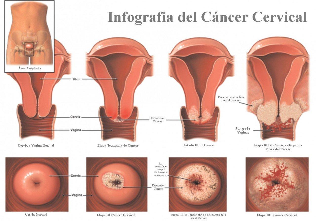 virus del hpv en mujeres