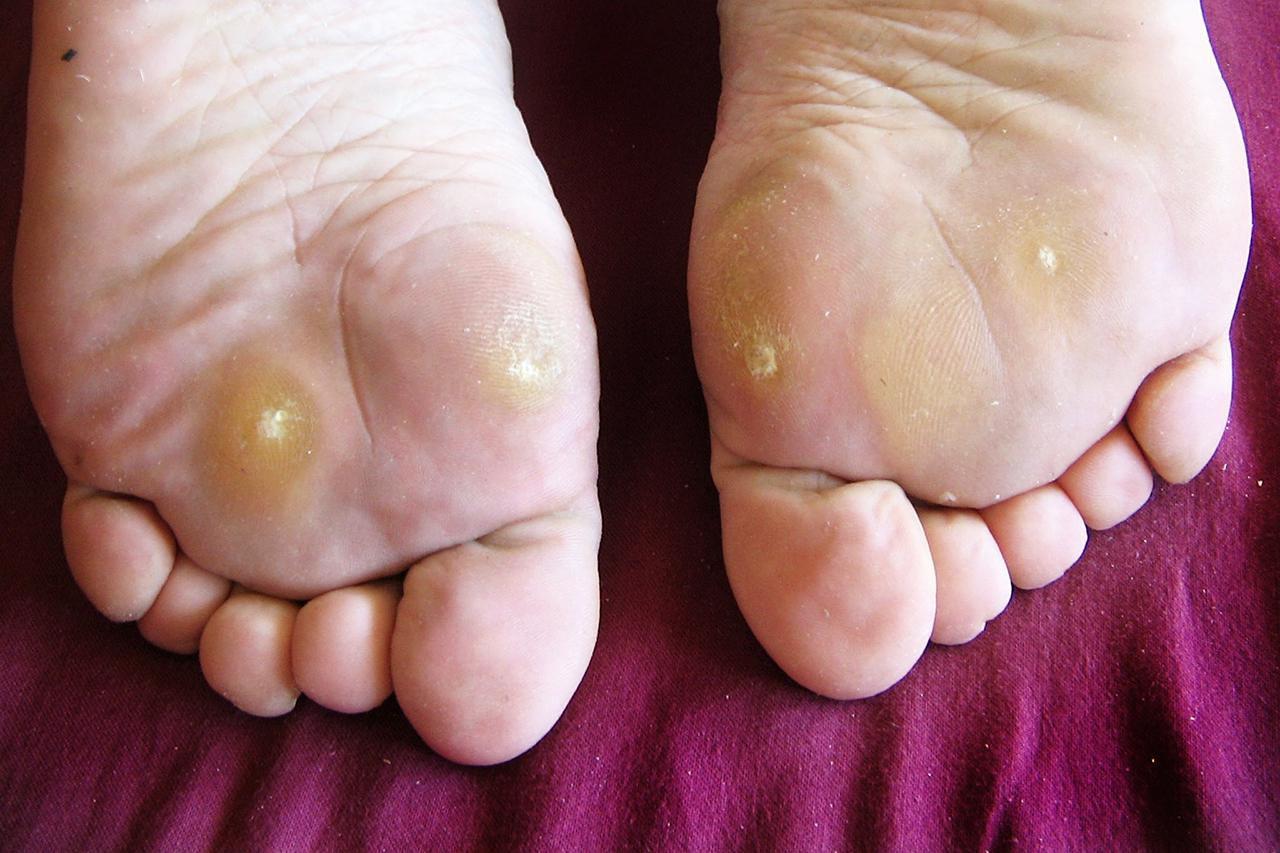 wart on foot with black center dermatite yeux