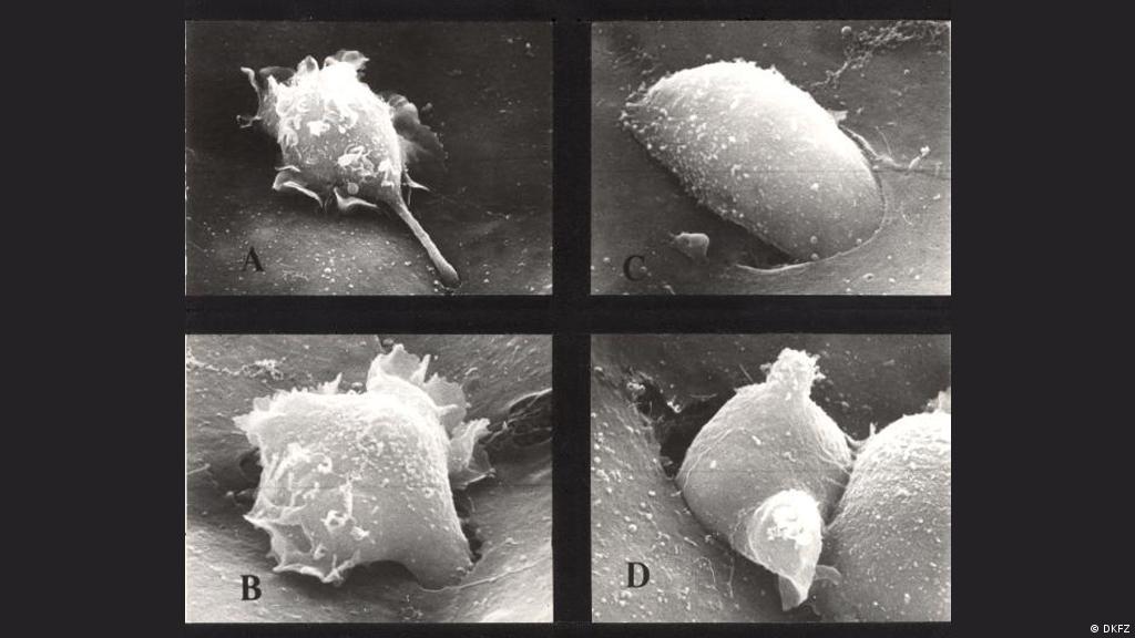 metastatic cancer dangerous human papilloma virus portal of entry