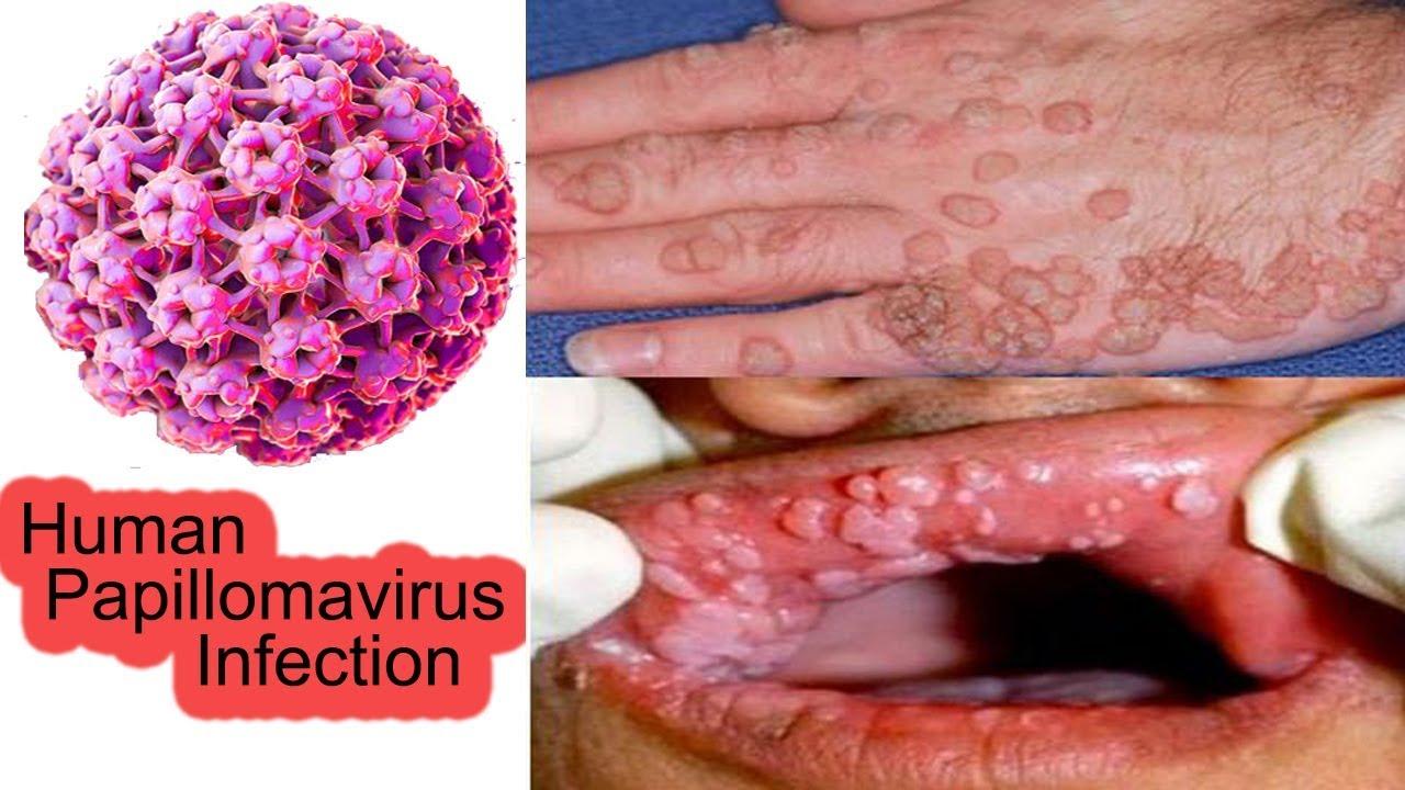 hpv symptomes femme)