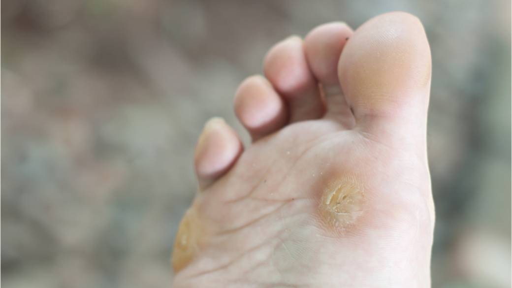 Foot wart under skin. Înțelesul