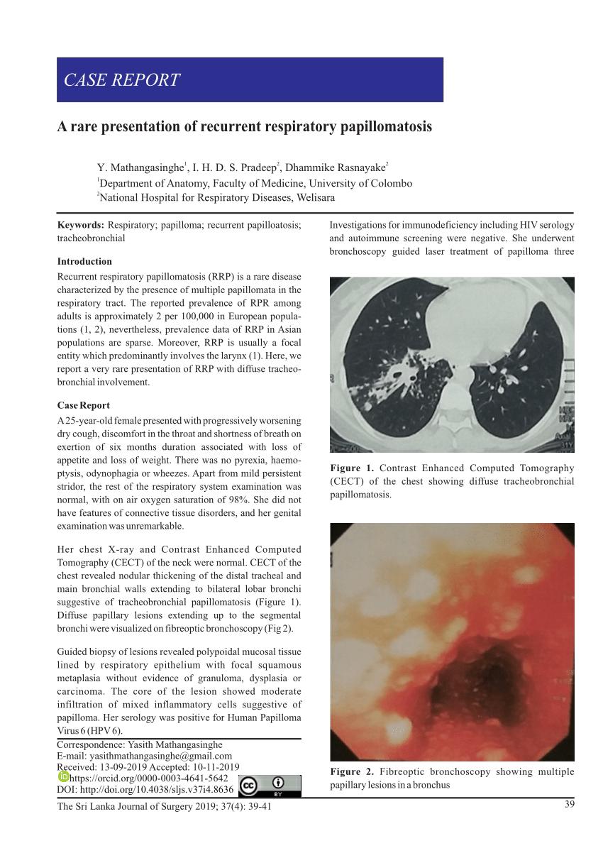 laryngeal papillomatosis bronchitis