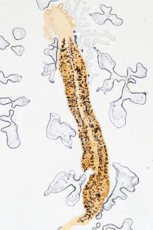 specii de viermi la copii