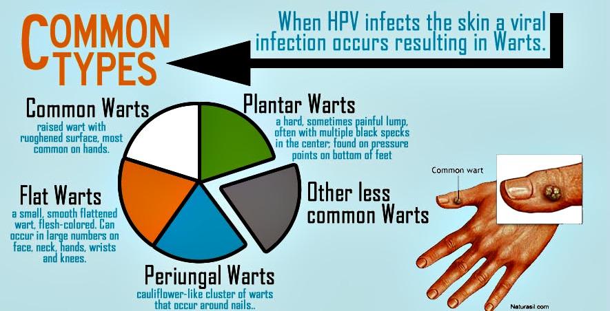 hpv strains causing warts)