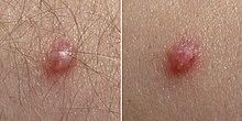 papillomavirus shqip sintomas del cancer de colon hombres