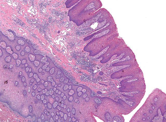 papilloma tongue pathology)
