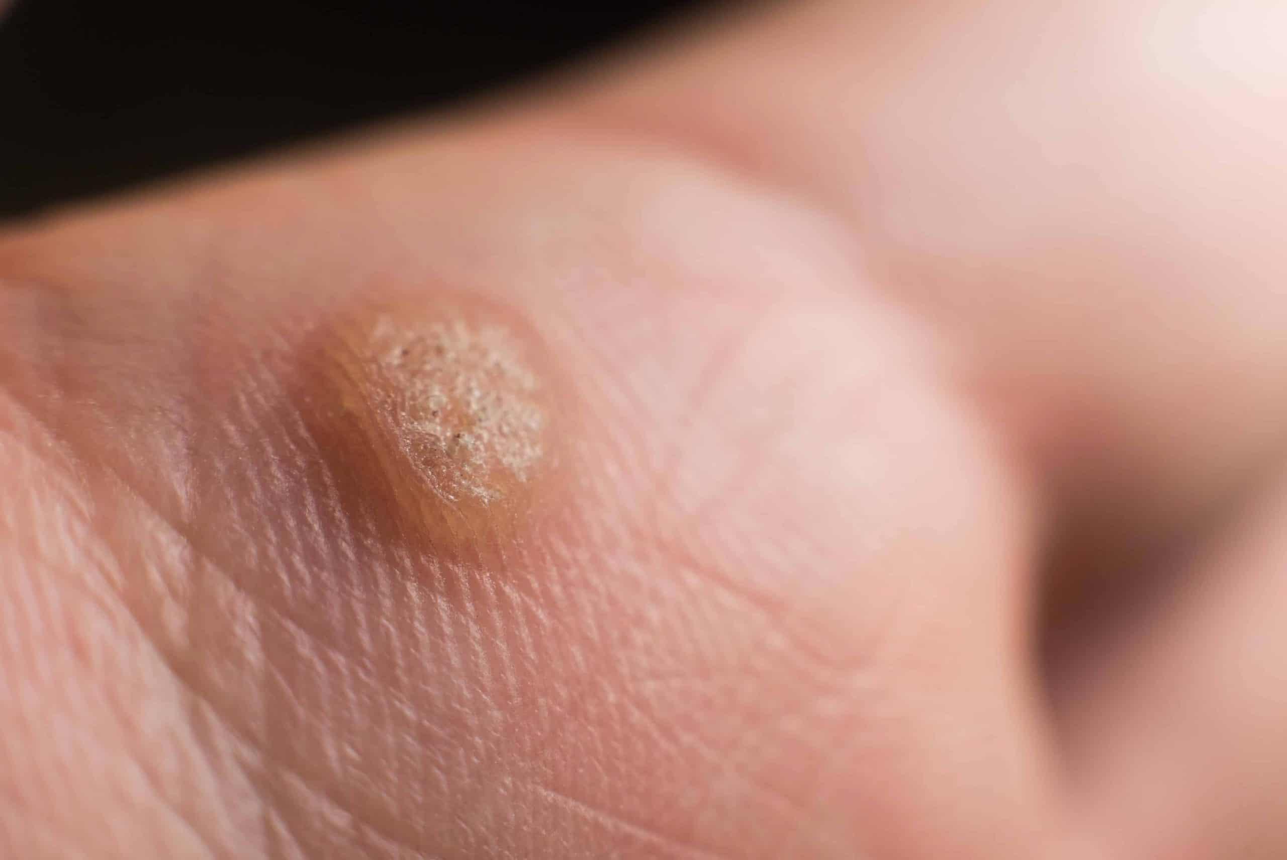 Hpv that causes warts on hands, Traducerea «papillomavirus» în 25 de limbi