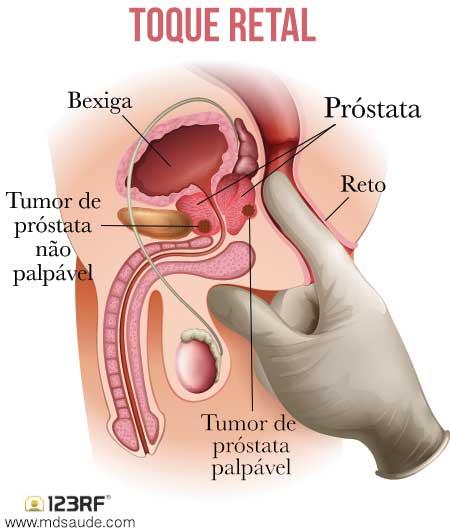 cancer de prostata em pacientes jovens)