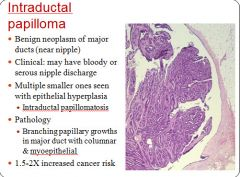 treatment for intraductal papilloma