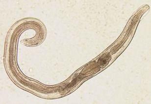 Enterobius Vermicularis (Oxiuris vermicularis) – divastudio.ro