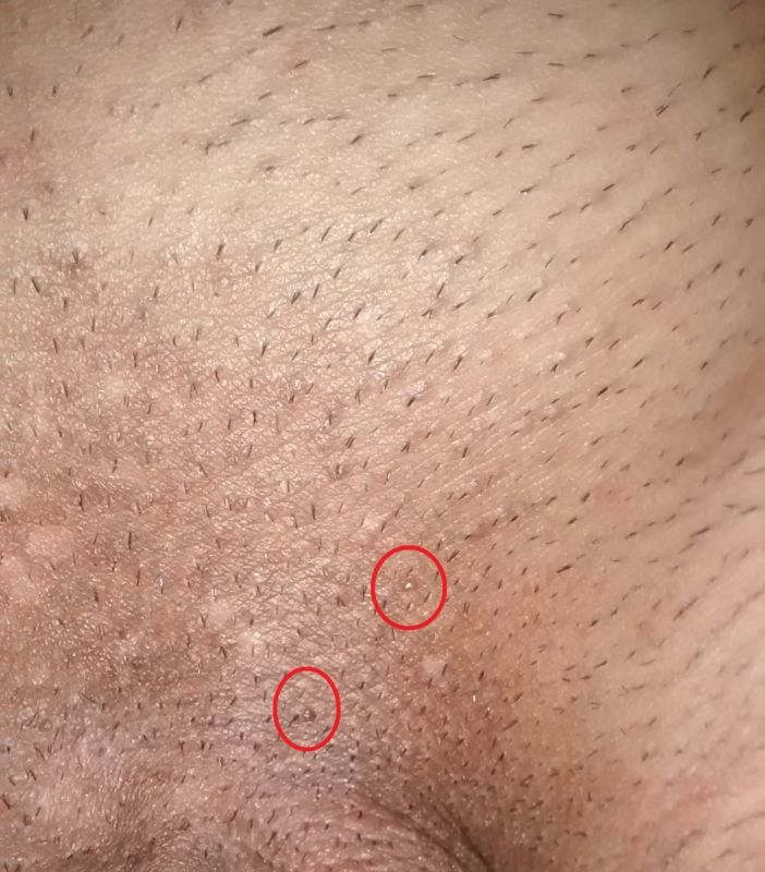 Hpv wart leg, Human papillomavirus infection effect