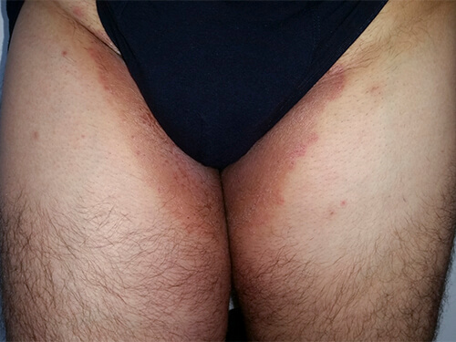 Infectiile genitale la barbati