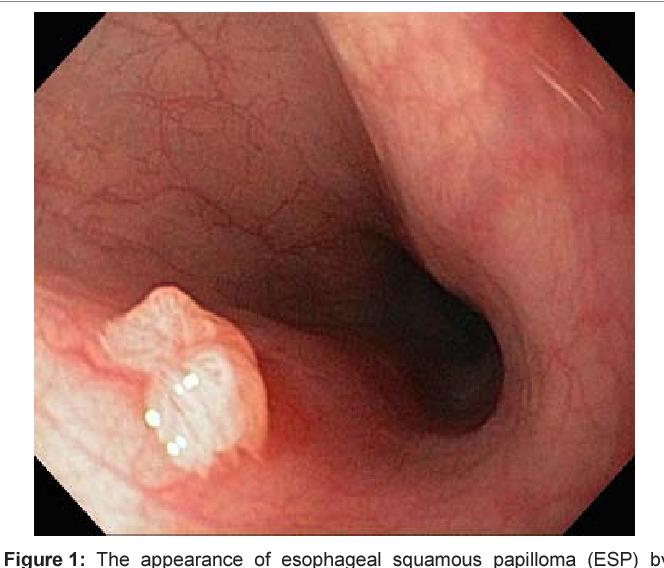 Esophageal squamous papilloma icd 10 - Papiloma humano de faringe