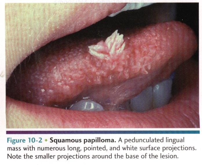 papilloma linguale cause