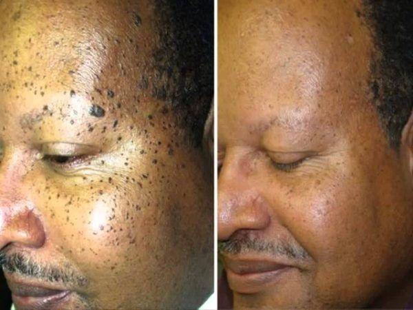 papilloma and moles)