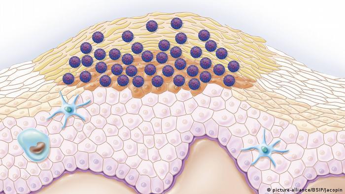 Tot ce trebuie sa stii despre HPV: Simptome & Tratament - Hpv virus active