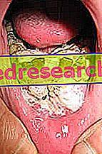 cancerul in gura