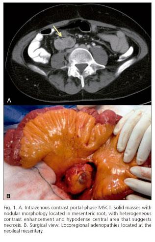 - Neuroendocrine cancer in lymph nodes