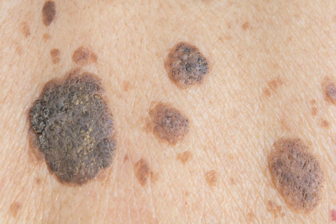 papillomavirus verrue seborrheique hpv causes infertility