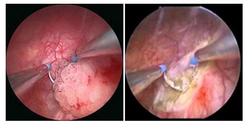 papilloma virus vescica laryngeal squamous papilloma pathology