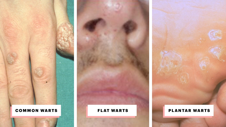 warts on skin types)