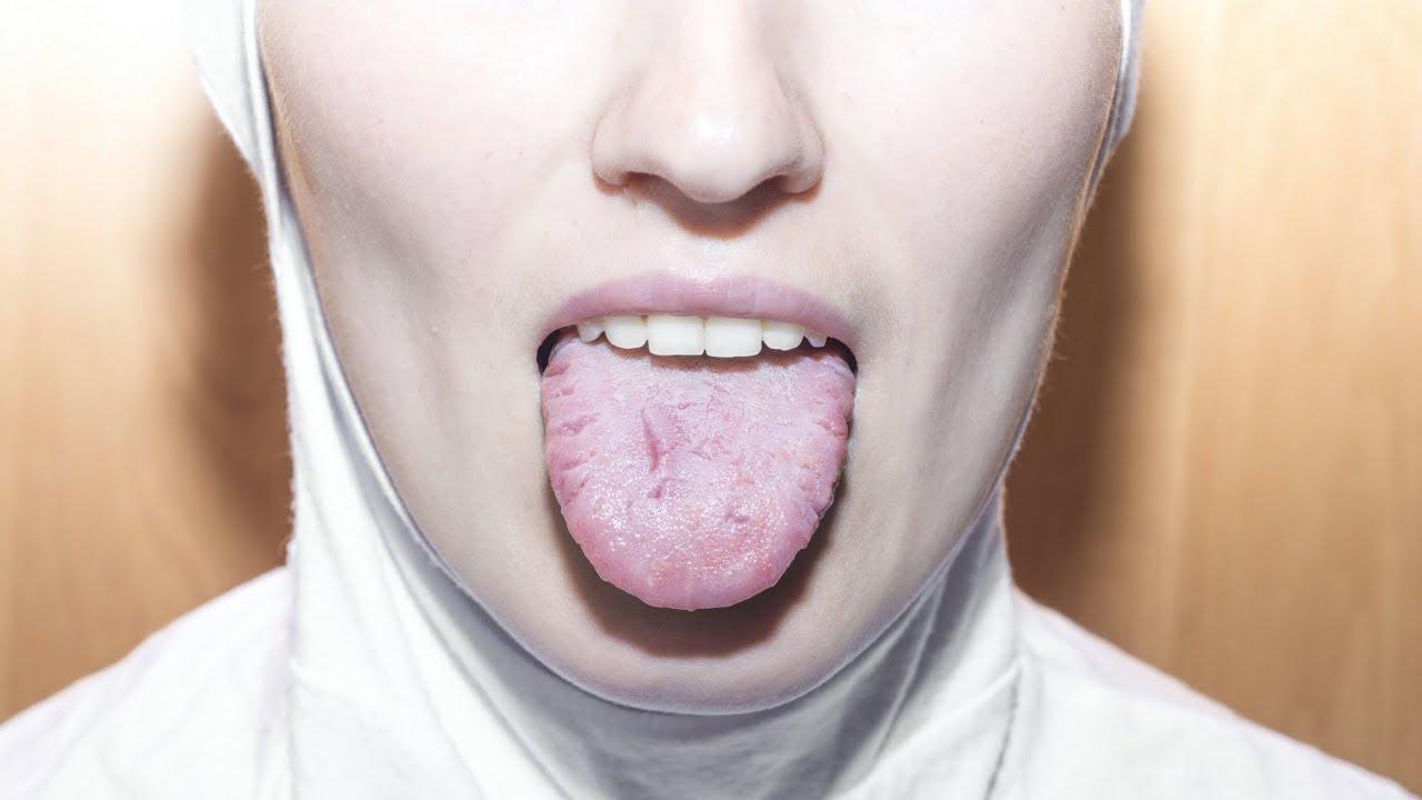 cancerul in gura)