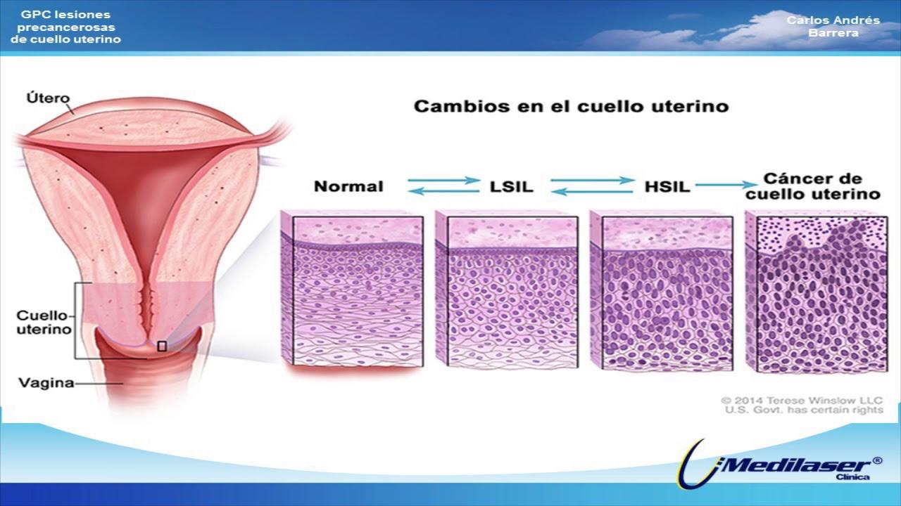 virus del papiloma gpc