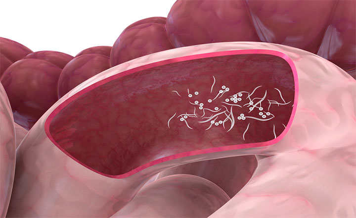tratamiento oxiuros durante embarazo)