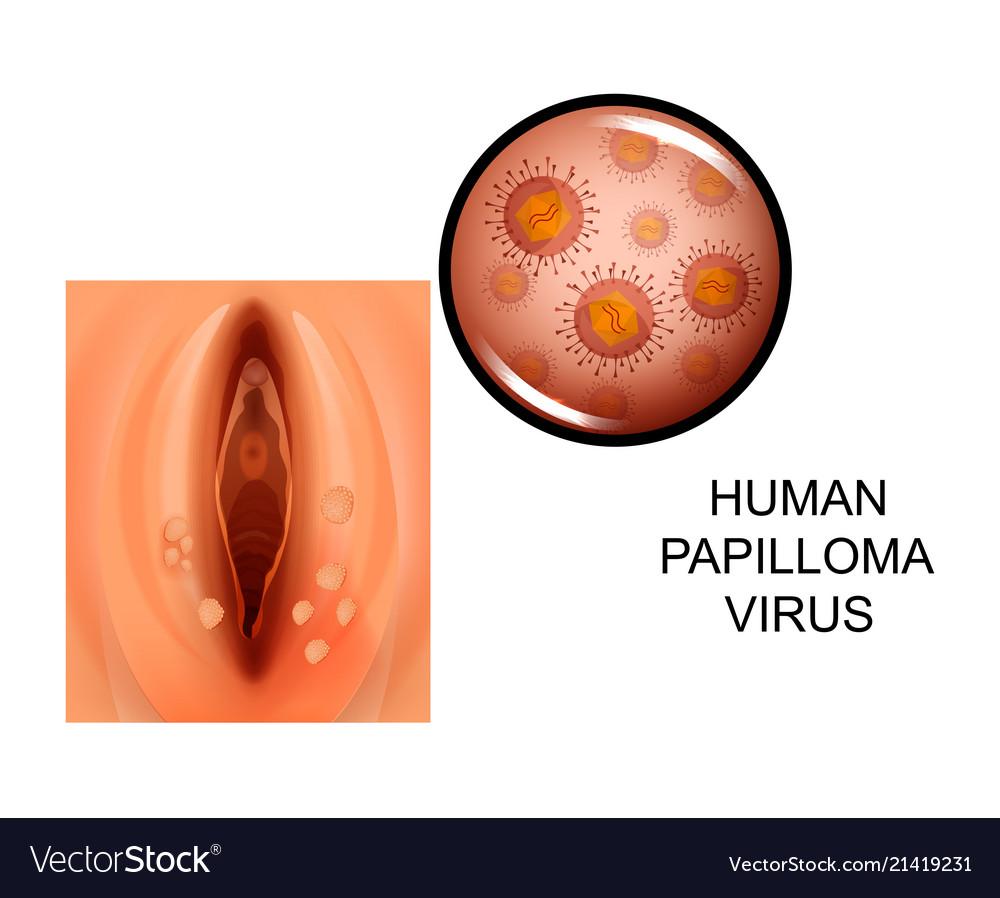 Riscurile la care se expun purtătorii virusului HPV. Au nevoie de control periodic
