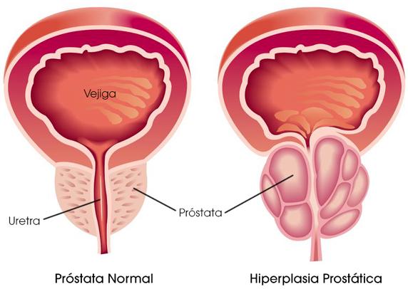 cancer prostata y vejiga)