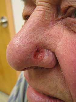 cancer de piele transmisibil