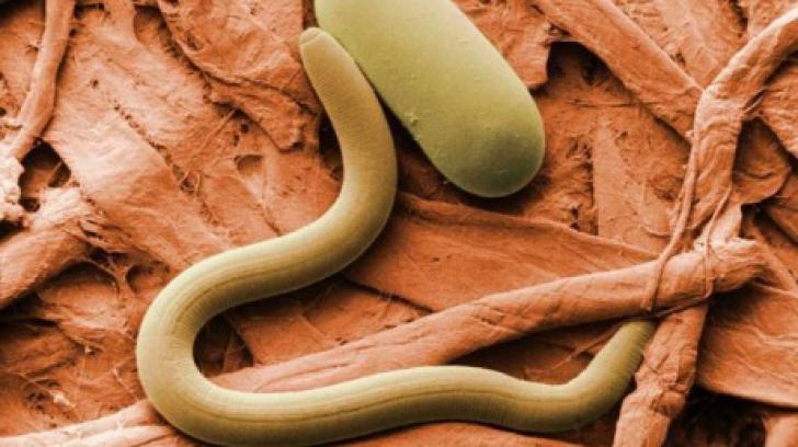 un parazit fungic)