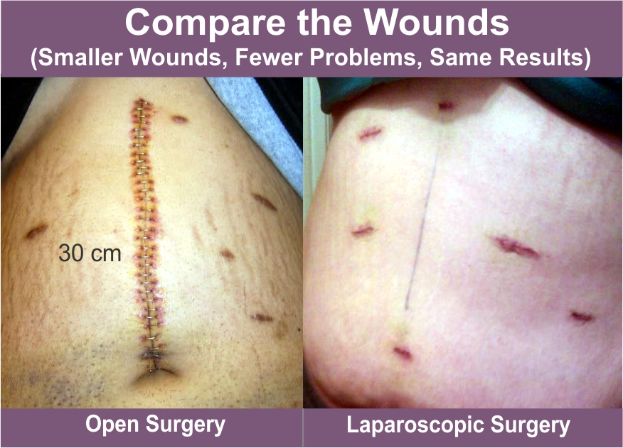 abdominal cancer removal)