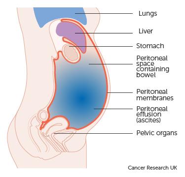 abdominal distension colon cancer)