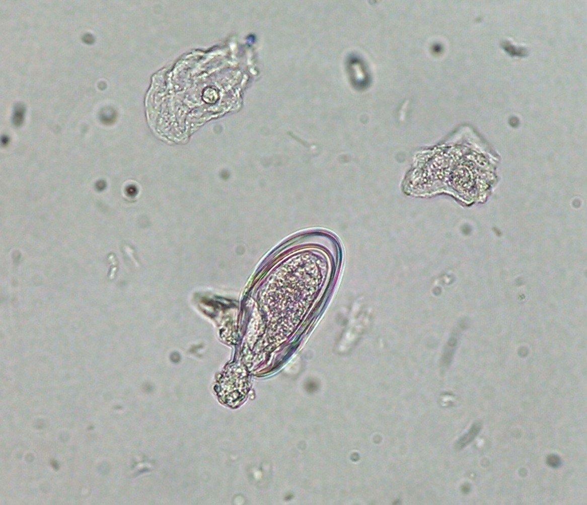 enterobius vermicularis urine